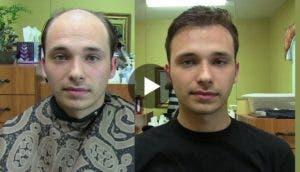 Increible-rapido-natural-peluquin-toupee-crece-el-cabello-en-segundos