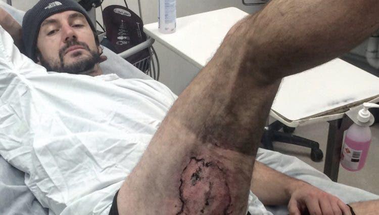 australiano-sufre-quemaduras-por-explosion-de-iphone1
