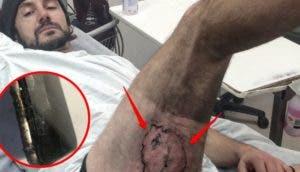 australiano-sufre-quemaduras-por-explosion-de-iphone1 - Copy