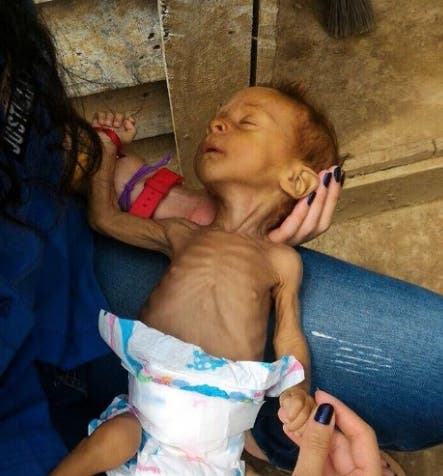 bebe-muere-de-hambre-venezuela5