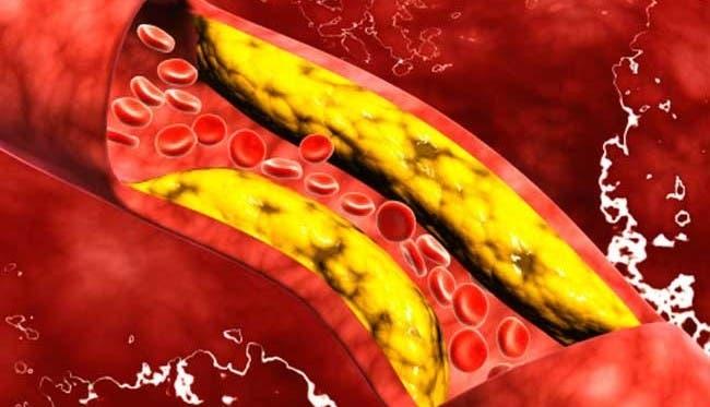 15-alimentos-para-limpiar-las-arterias10