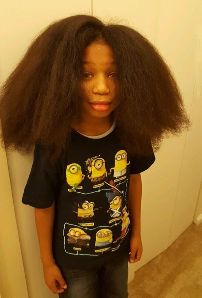 cabello-pelucas-cancer-5