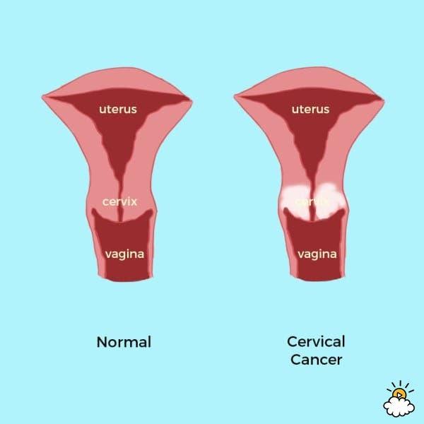 cancer-cervical-2