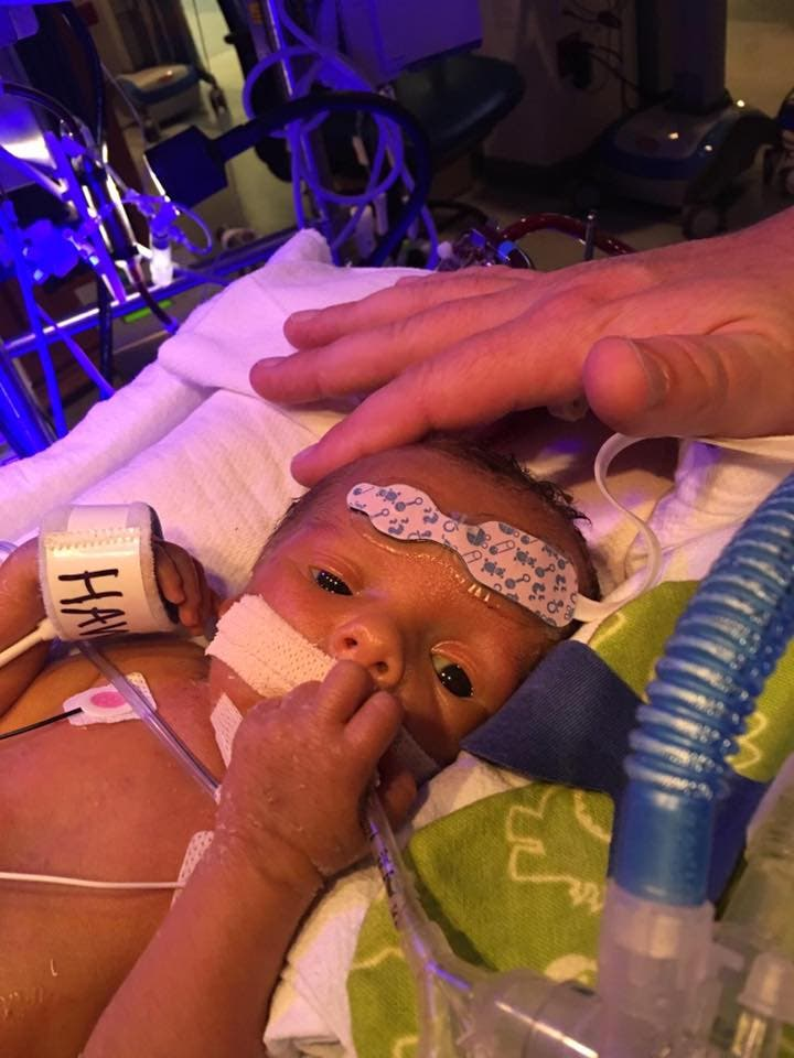gemelos-abrazo-hospital1