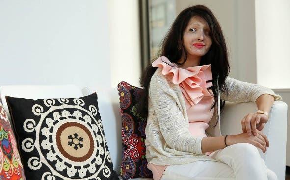 mujer-victima-de-ataque-con-acido-participa-en-semana-de-la-moda-ny10