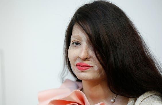 mujer-victima-de-ataque-con-acido-participa-en-semana-de-la-moda-ny9