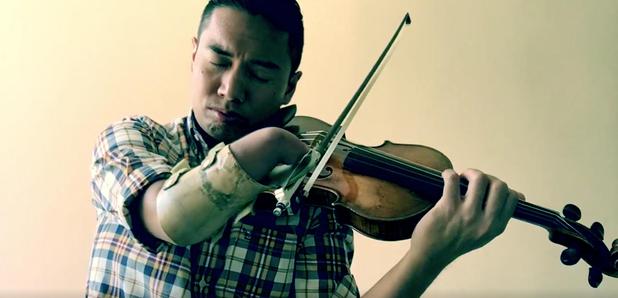 violinista-sin-mano-adrian