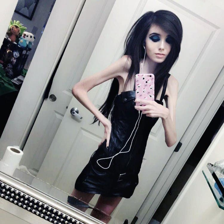 eugenia-cooney-youtuber-anorexia-09
