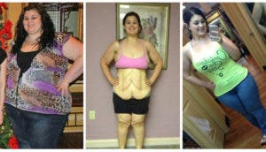 kaitlyn-smith-cirugia-remover-piel-portada