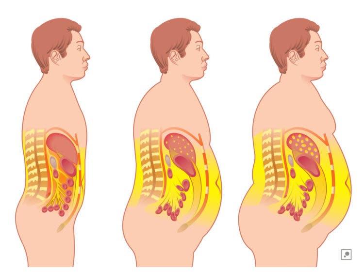grasa-acumulada-en-el-cuerpo