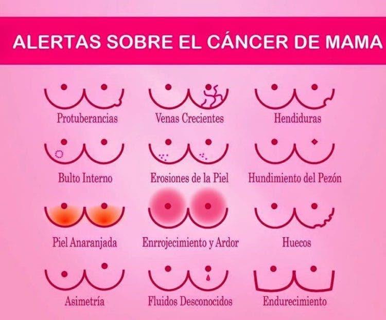 alertas-cancer-de-mama