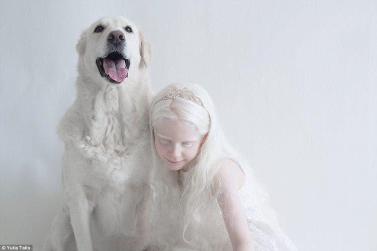fotos-personas-albinas-5