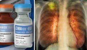 vacuna-pulmon