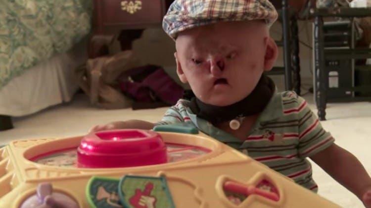 adam-bebe-deformado-sindrome-bartsocas-papas-05