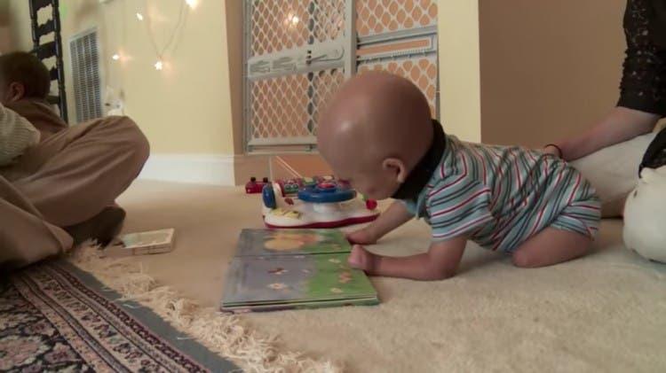adam-bebe-deformado-sindrome-bartsocas-papas-09