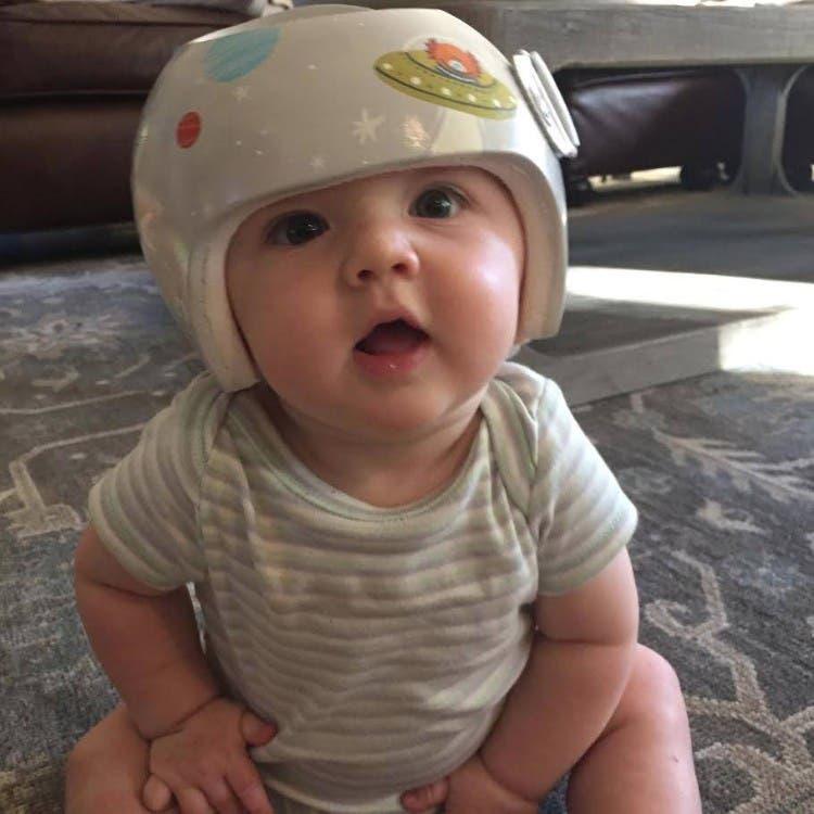 cascos-ortopedicos-para-bebes-muy-divertidos-01