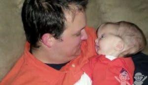 bebe-hidrocefalia