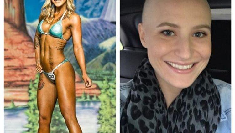 comparte-fotos-tras-sufrir-cancer-de-ovario2