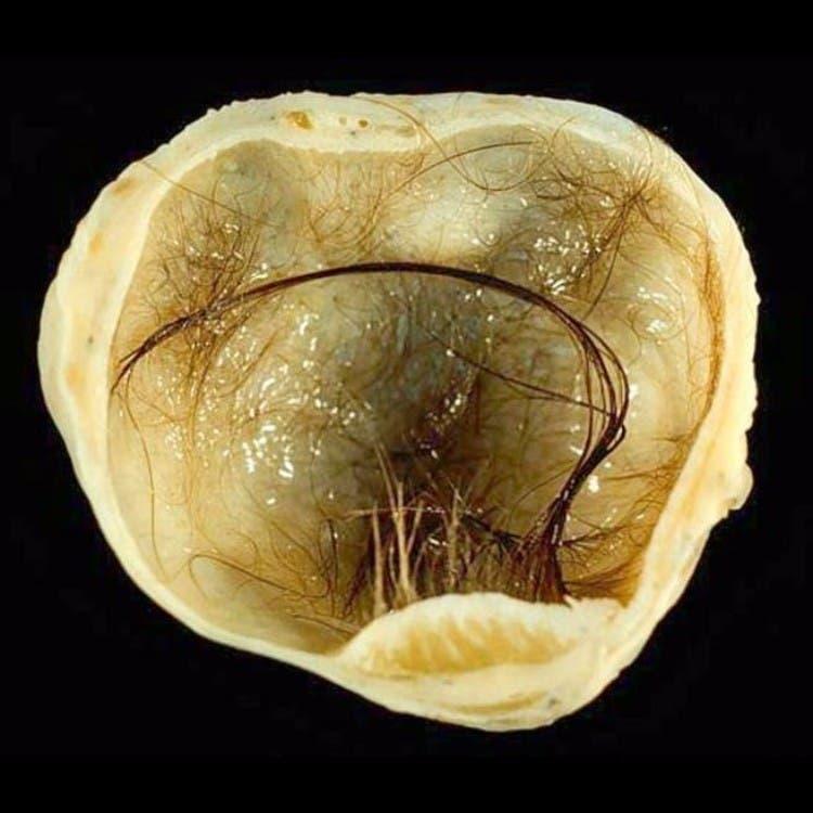 Tumor-ovario-con-cerebro-adentro 02