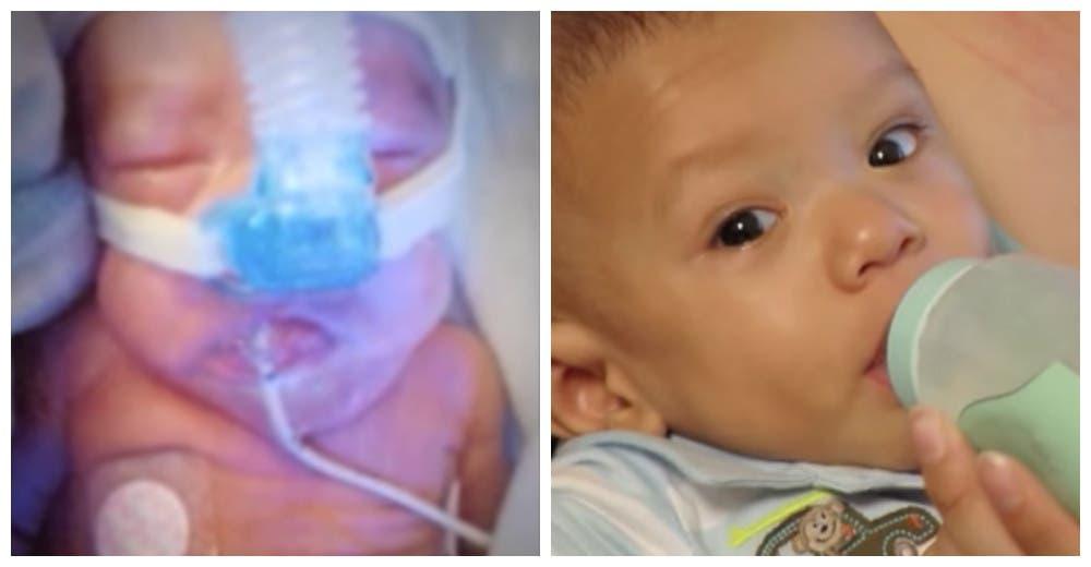 tyson-bebe-prematuro-portada