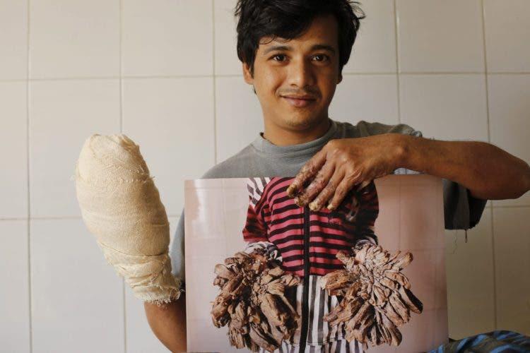 """AAA06 DACCA (BANGLADESH) 09/01/2017.- El joven conocido como """"hombre árbol"""" de Bangladesh, Abul Bajandar, muestra una fotografía de cómo estaban sus manos antes de someterse a 16 operaciones en el Dacca Medical College en Bangladesh hoy, 9 de enero de 2017. Bajandar lleva en tratamiento durante 10 meses y ha tenido que ser intervenido en 16 ocasiones en las manos y las piernas. EFE/Abir Abdullah"""