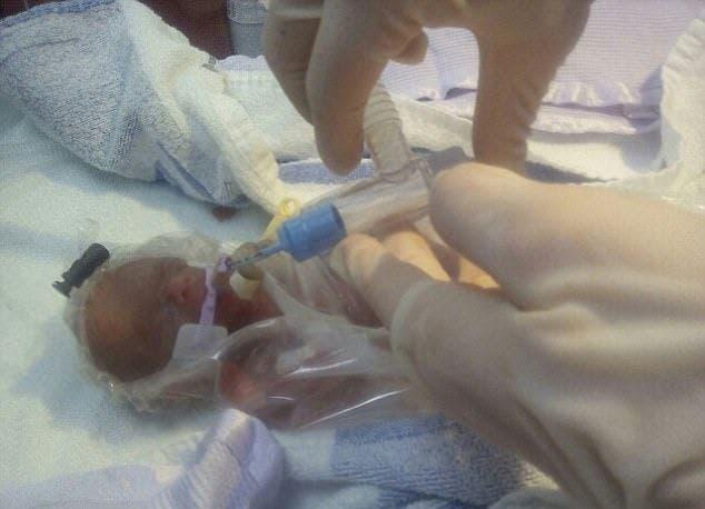 imagenes de bebe de 25 semanas de gestacion
