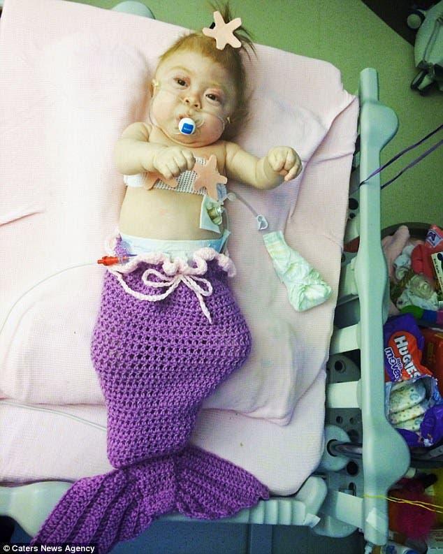 Extraña condición de niño Willow Rae Porter pronóstico un año madre Katie Hanson Seattle Washington USA 72 casos mundo