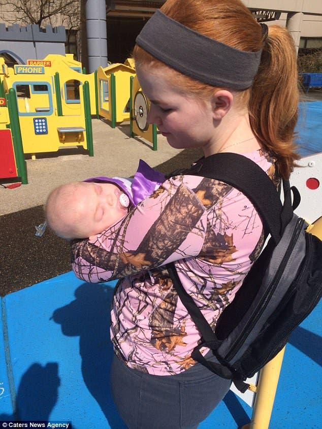 Extraña condición de niño Willow Rae Porter pronóstico un año madre Katie Hanson Seattle Washington USA 72 casos mundo Mucolipidosis tipo II MLII