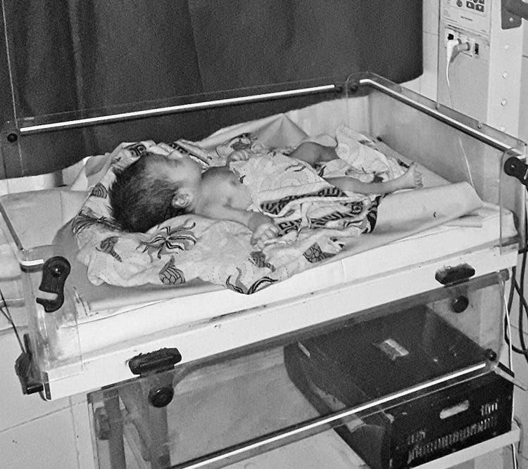 India bebe enterrada viva cabeza pies sobresalir encontrada niña rescate dote