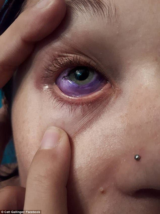Catt Gallinger canada ottawa tatuaje ojo pierde vista tuerta infección tattoo loses sight sclera esclera parte blanca tinta morada