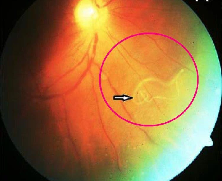 asqueroso horrible un gusano infecto el ojo de un joven es un caso muy raro video que muestra el parasito moviendose dentro del ojo parasite eye iiris infection rare extraordinary