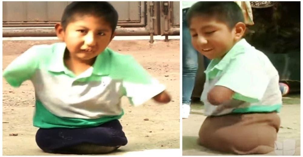 El niño que nació sin brazos ni piernas no se rinde a pesar de tanto rechazo