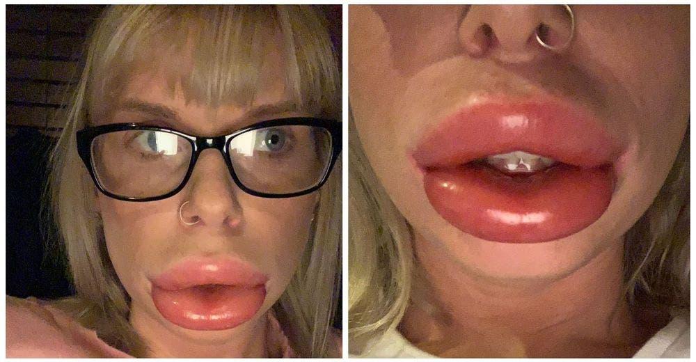 Una madre queda con «labios de salchicha» después de un tratamiento estético casero
