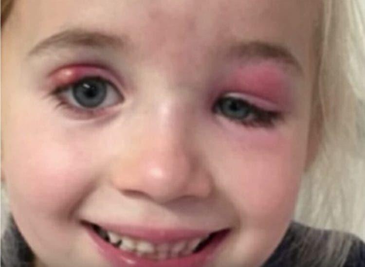 Cómo diagnosticar una infección ocular
