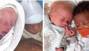 Sus gemelos son tan distintos que pensó que solamente uno era su hijo