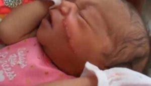 A una bebé le cortan la cara durante la cesárea y le cosen 13 puntos