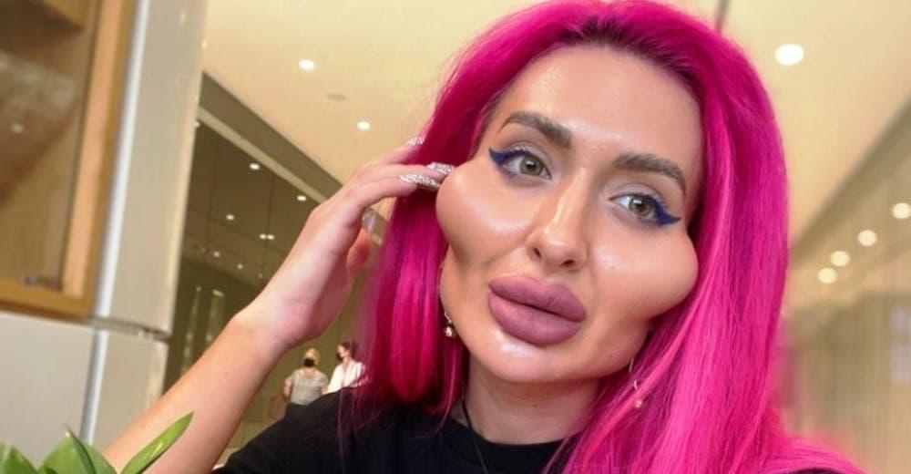 Es la mujer con los pómulos más grandes del mundo pero no quiere dejar de operarse