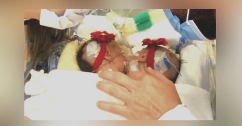 Se aferra a la esperanza de que sus 2 bebés que comparten 1 corazón sí sobrevivirán