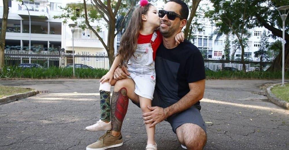 Se tatúa una prótesis para apoyar a su hija de 5 años que perdió una pierna